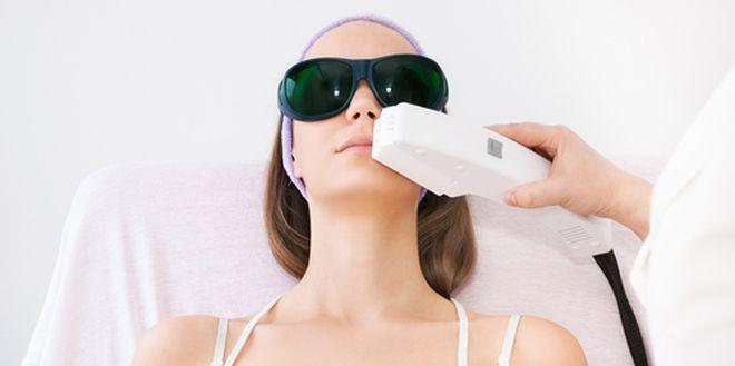 Lasersko-odstranjevanje-dlak-z-obraza
